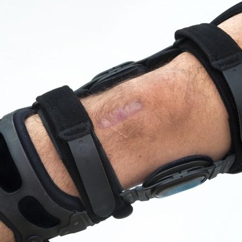 Knee Brace | Orthotics | Hamilton